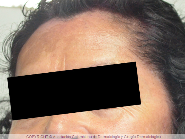 melasma: manchas oscuras en la cara